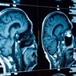 Une expérience de stimulation (TMS) cérébrale soulage la dépression